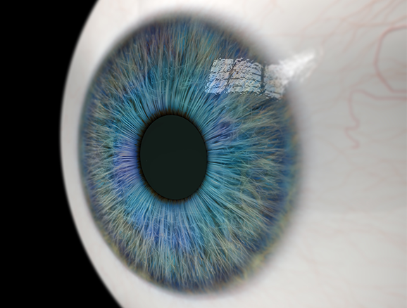 Close up of glaucoma in eye. Santen develops opthalmalmology treatments and medications for glaucoma.