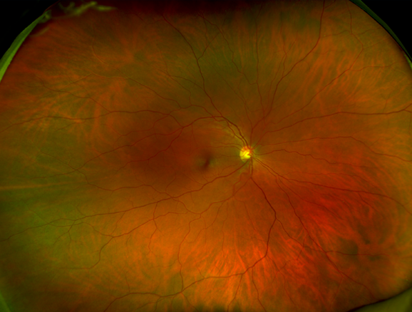Close up of retina. Santen is dedicated to developing opthalmalmology treatments and medications for  retinal diseases.